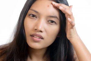 Hormones & Your Skin